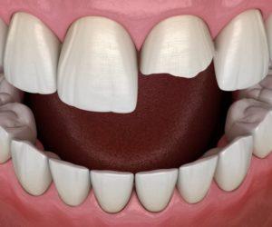 Model of fractured tooth in Huntsville