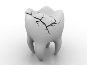 A single tooth with a large crack on white background